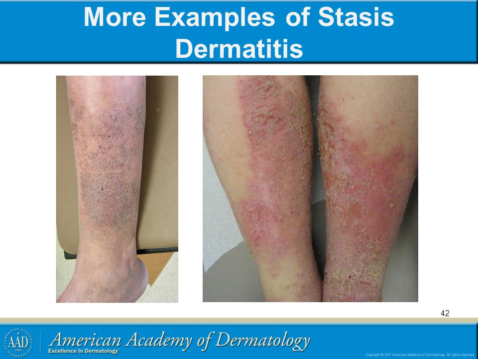 More Examples of Stasis Dermatitis