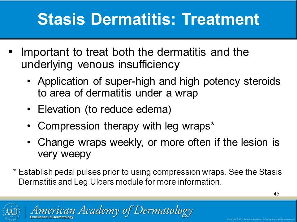 Stasis Dermatitis: Treatment