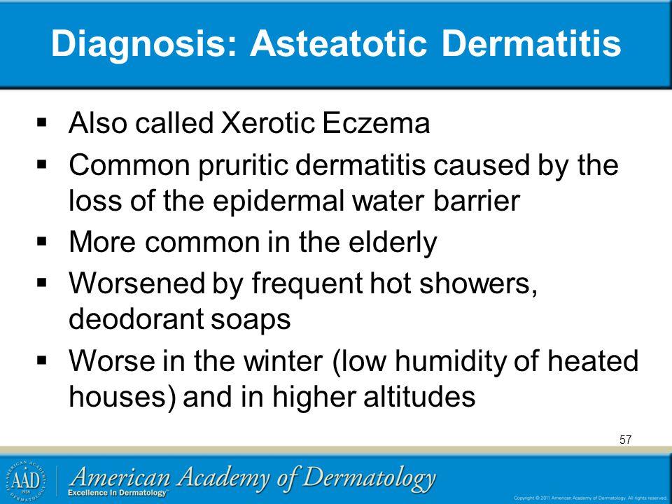 Diagnosis: Asteatotic Dermatitis