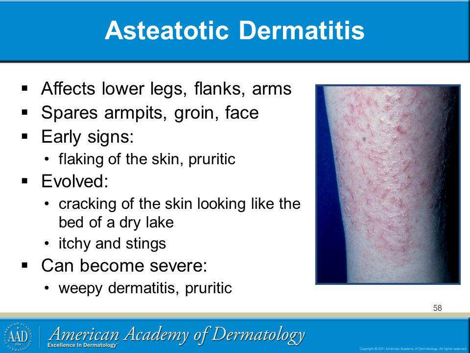 Asteatotic Dermatitis
