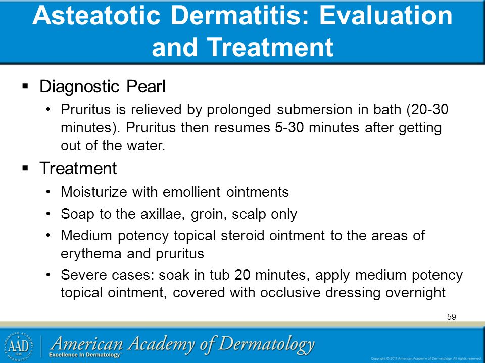 Asteatotic Dermatitis: Evaluation and Treatment