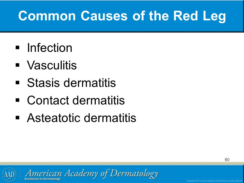 Common Causes of the Red Leg