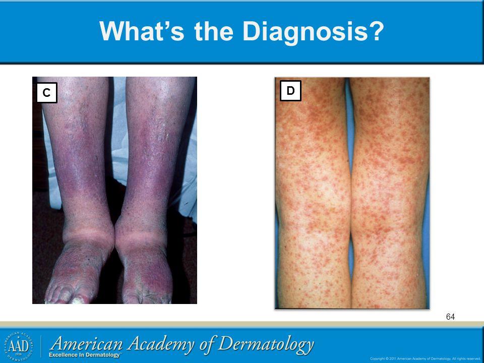 What's the Diagnosis C D