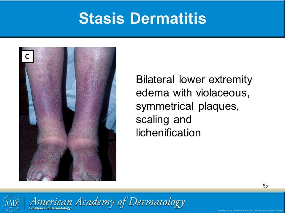 Stasis Dermatitis C.