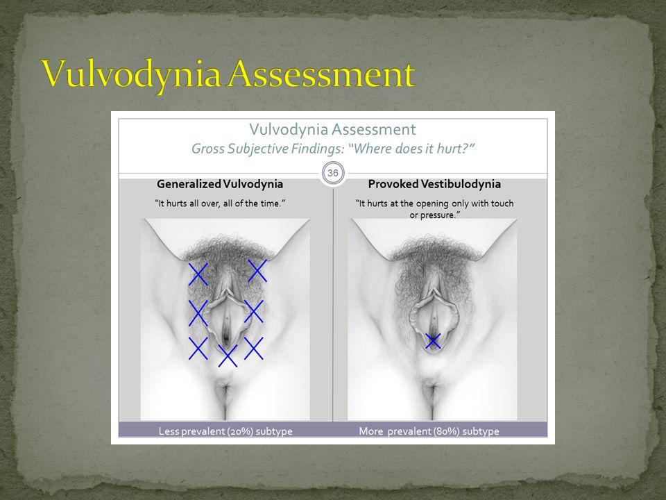 Vulvodynia Assessment