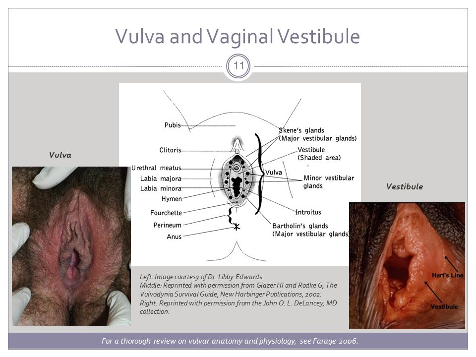 ISSVD Classification Vulvar pain related to a specific disorder is not considered vulvodynia. Infections.