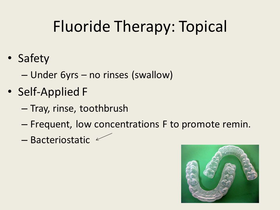 Fluoride Therapy: Topical