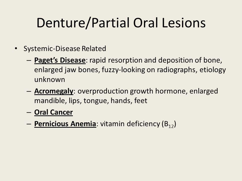 Denture/Partial Oral Lesions