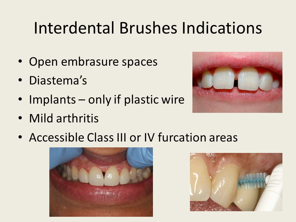 Interdental Brushes Indications