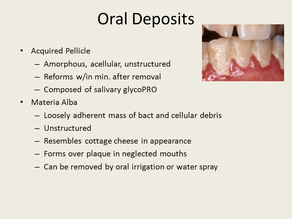 Oral Deposits Acquired Pellicle Amorphous, acellular, unstructured