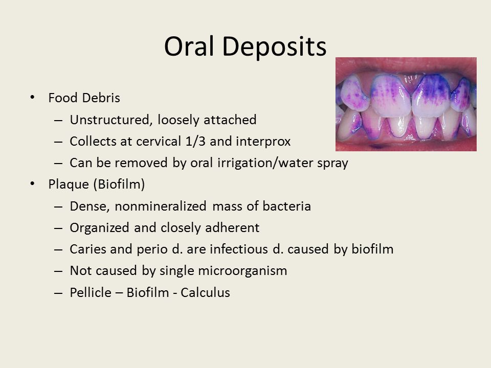 Oral Deposits Food Debris Unstructured, loosely attached