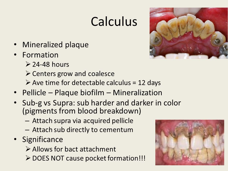 Calculus Mineralized plaque Formation