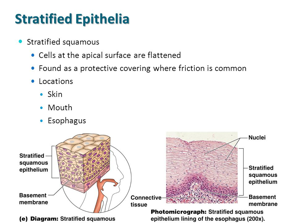 Stratified Epithelia Stratified squamous