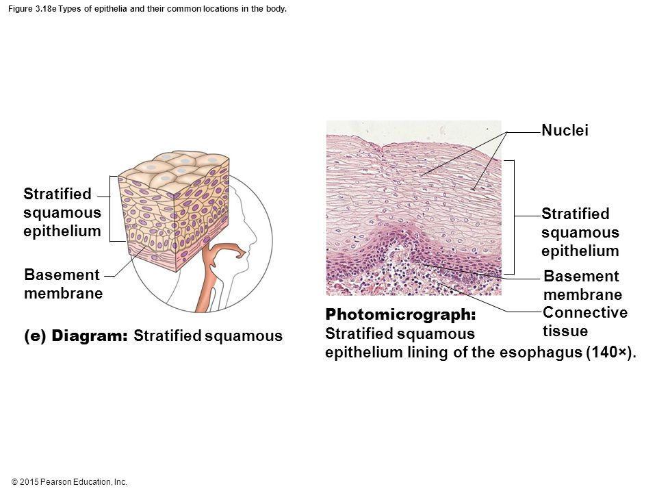 Stratified squamous epithelium Stratified squamous epithelium