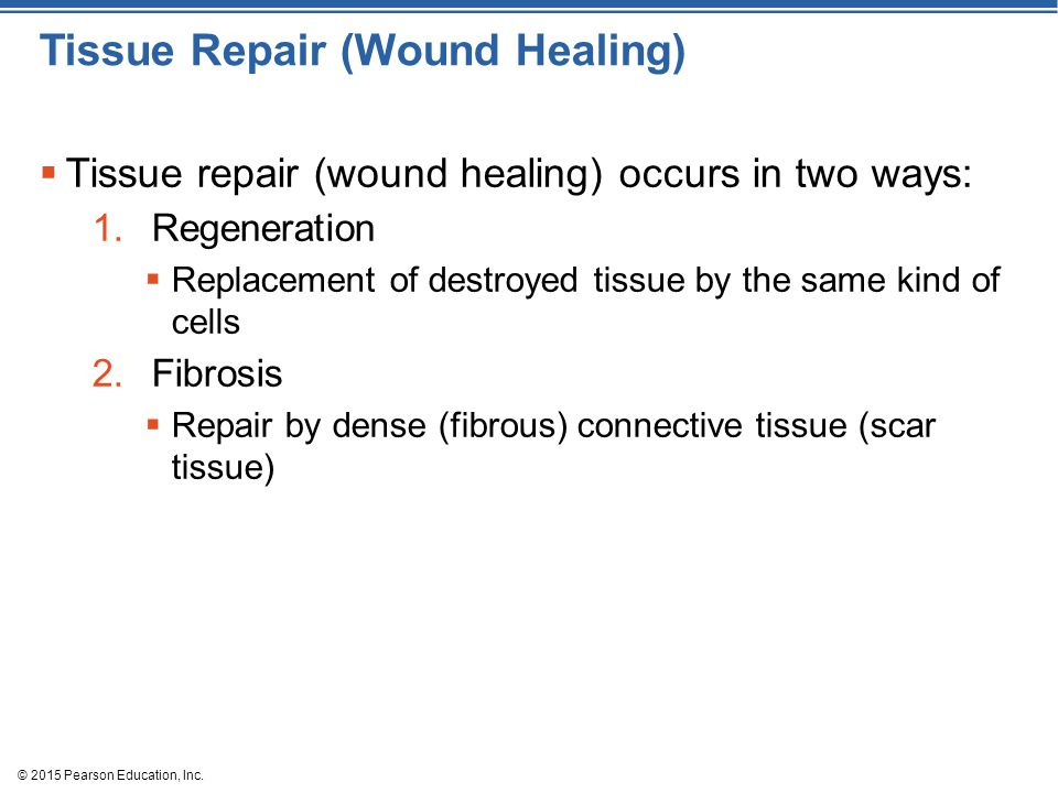 Tissue Repair (Wound Healing)