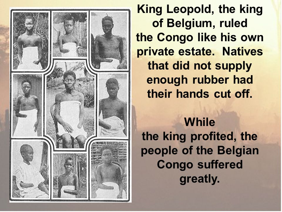 private estate. Natives Congo suffered greatly.