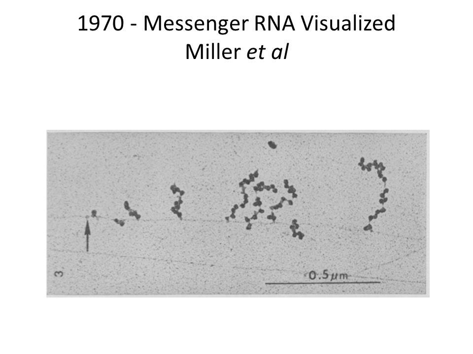 1970 - Messenger RNA Visualized Miller et al