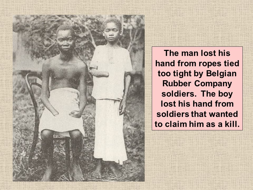 The man lost his hand from ropes tied too tight by Belgian Rubber Company soldiers.