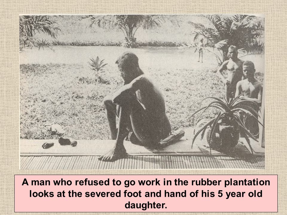 A man who refused to go work in the rubber plantation looks at the severed foot and hand of his 5 year old daughter.