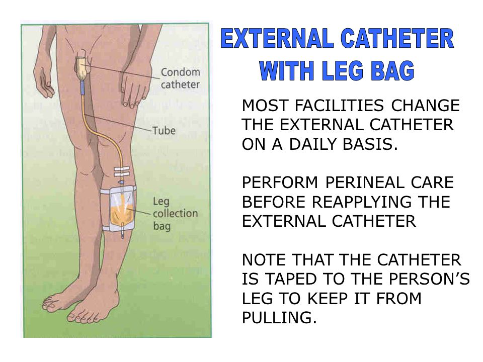 EXTERNAL CATHETER WITH LEG BAG MOST FACILITIES CHANGE