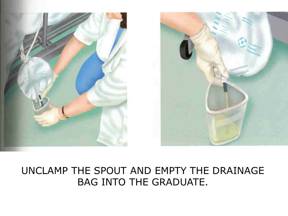 UNCLAMP THE SPOUT AND EMPTY THE DRAINAGE BAG INTO THE GRADUATE.