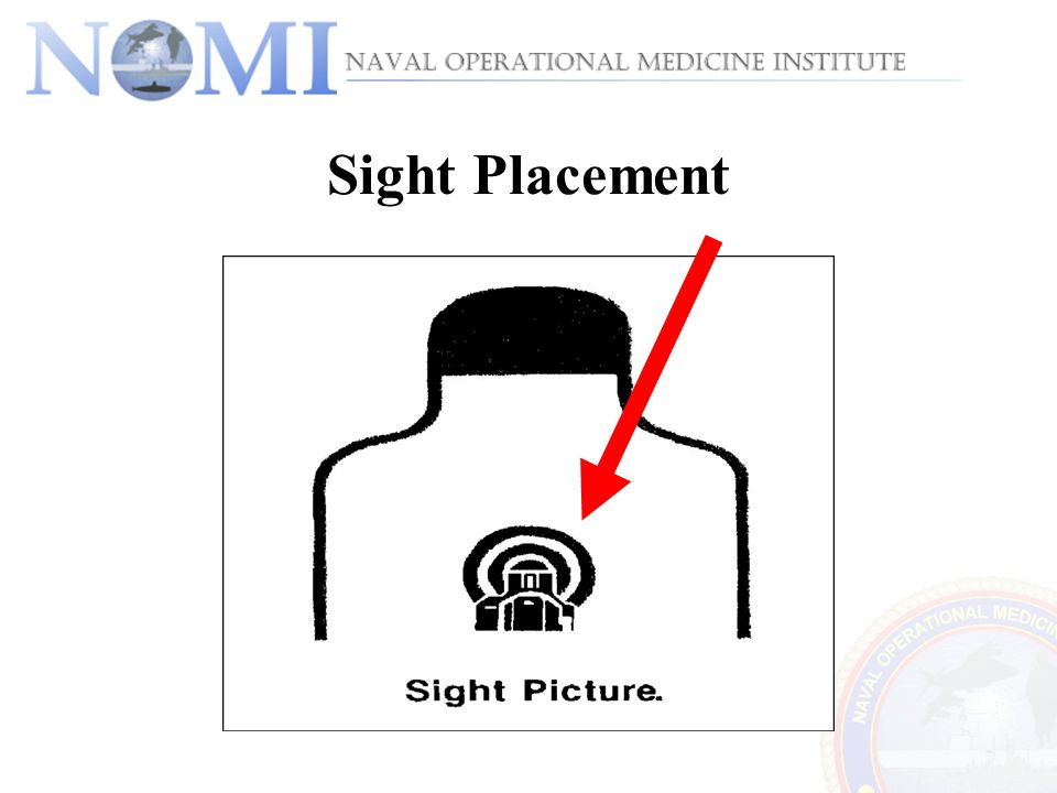 Sight Placement