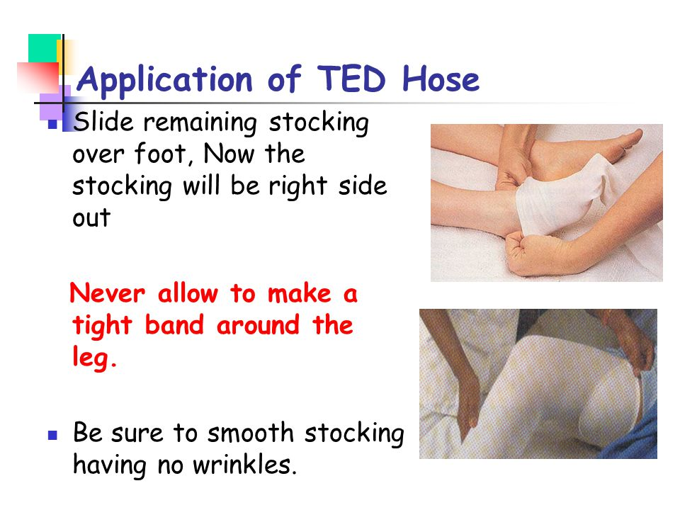 Application of TED Hose