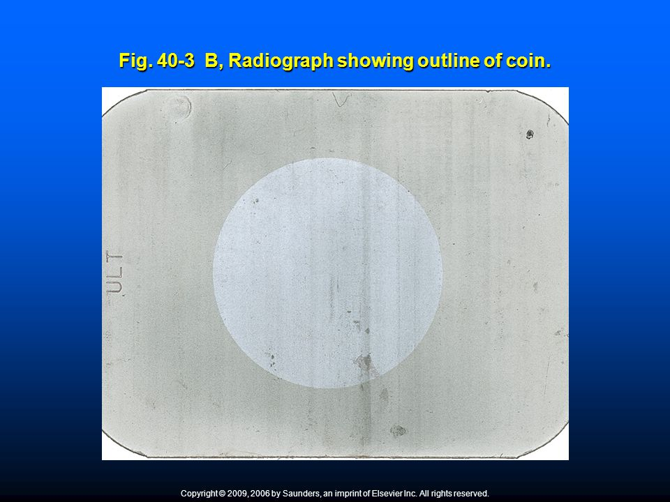 Fig. 40-3 B, Radiograph showing outline of coin.