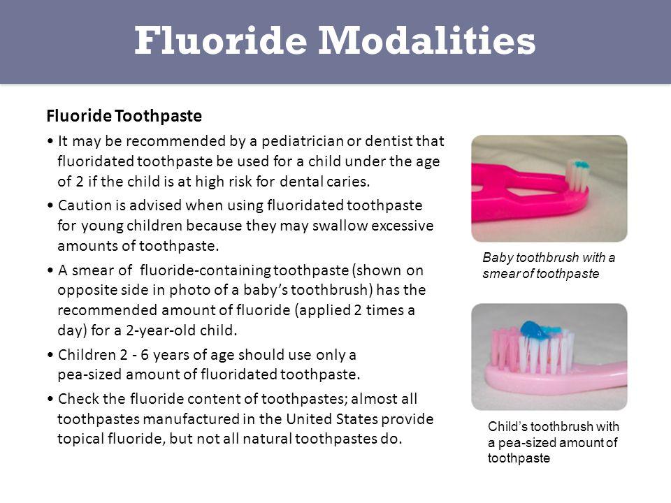 Fluoride Modalities Fluoride Toothpaste