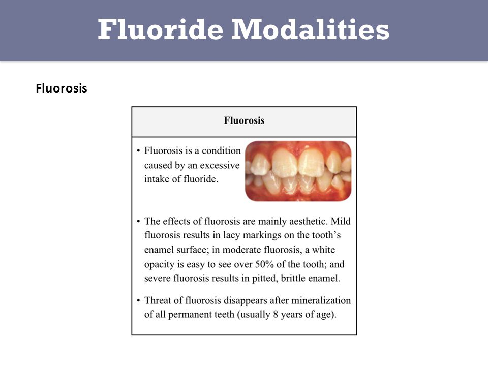 Fluoride Modalities Fluorosis