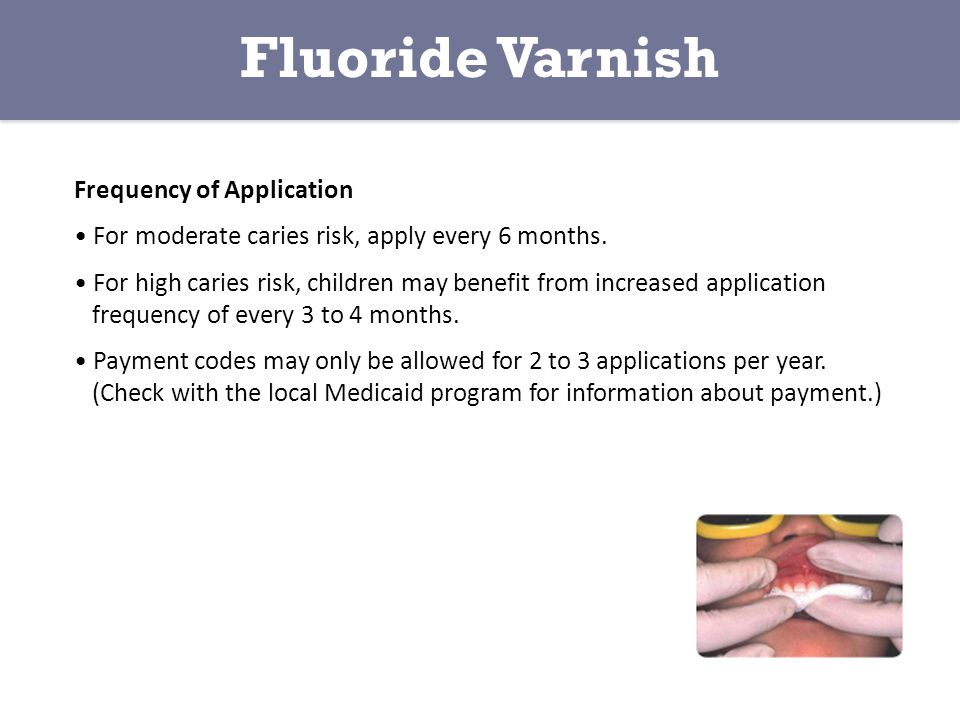 Fluoride Varnish Frequency of Application