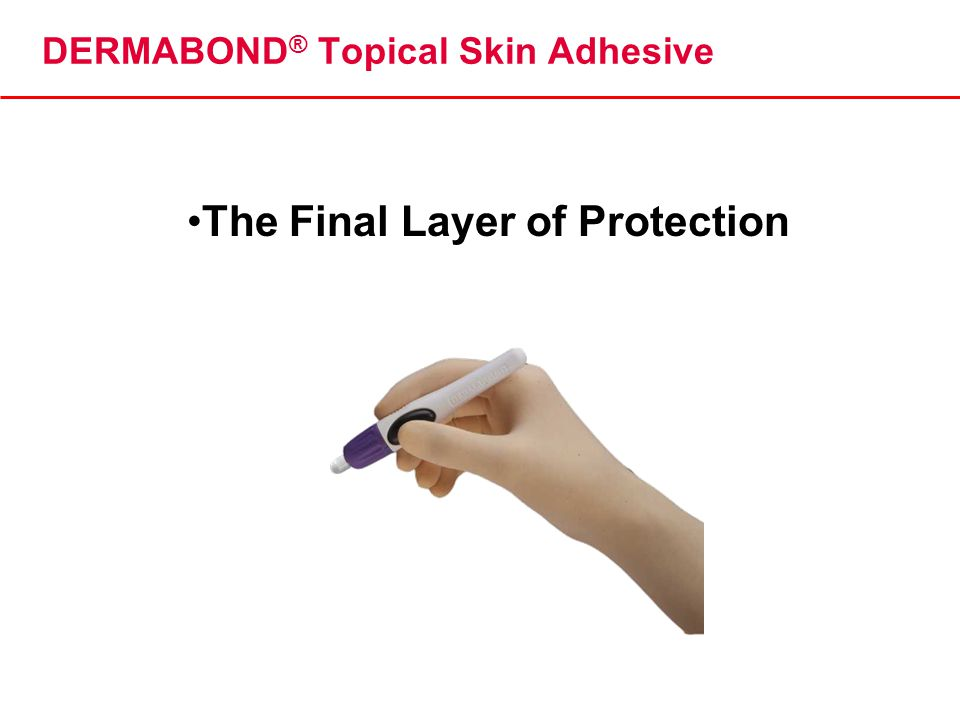 DERMABOND® Topical Skin Adhesive