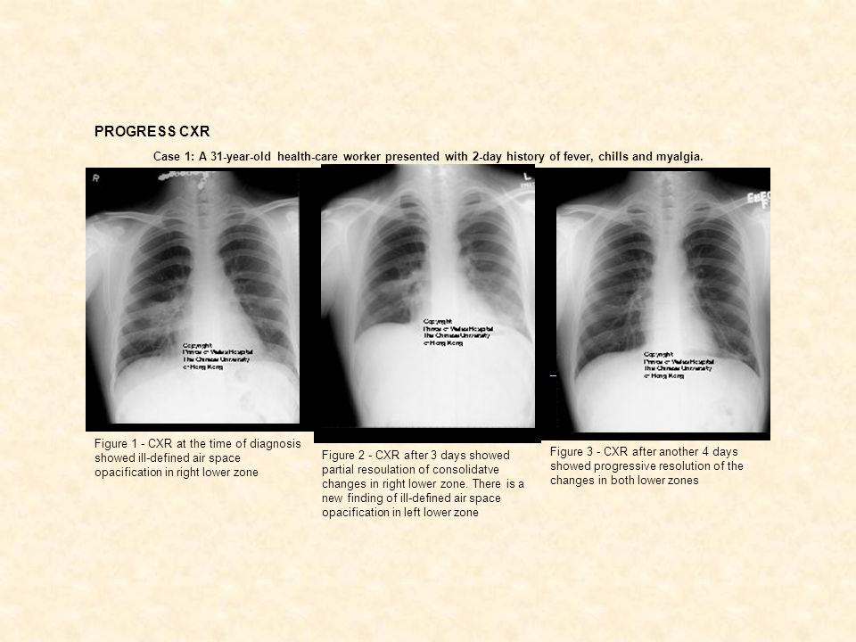 PROGRESS CXR Case 1: A 31-year-old health-care worker presented with 2-day history of fever, chills and myalgia.
