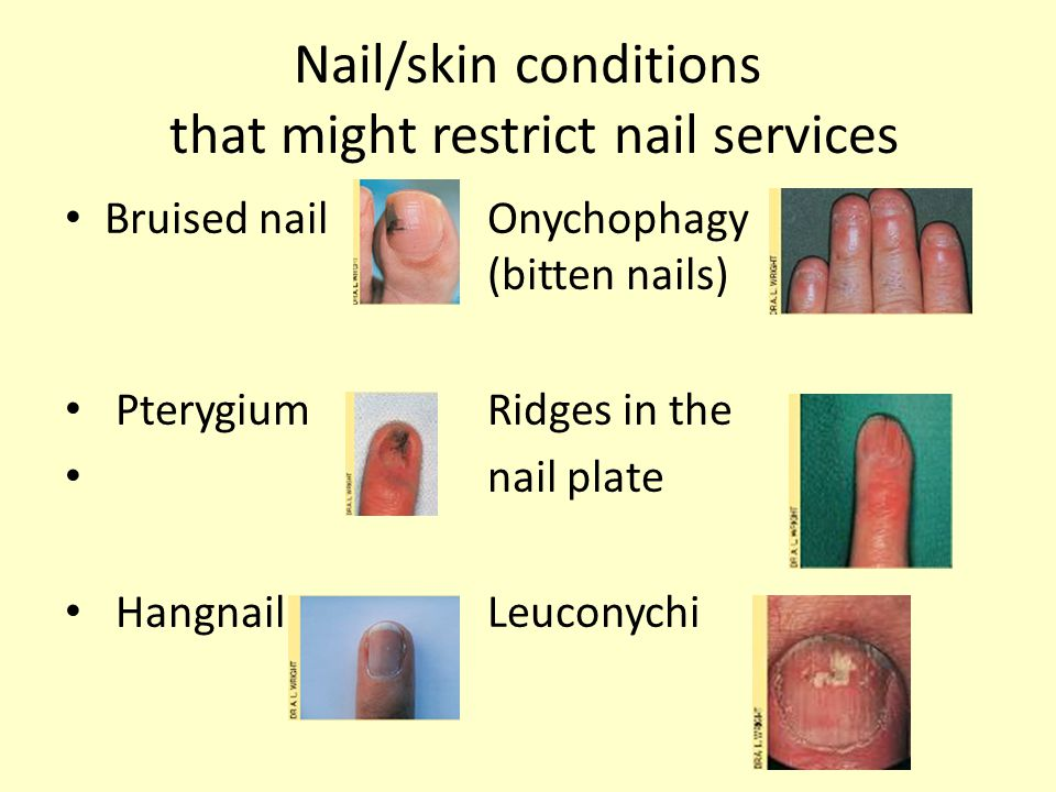 Nail/skin conditions that might restrict nail services