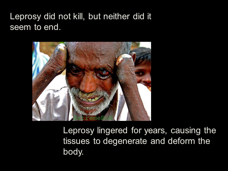 Leprosy did not kill, but neither did it seem to end.