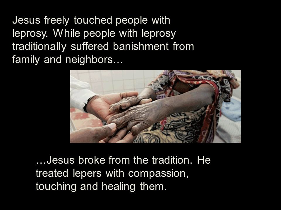 Jesus freely touched people with leprosy