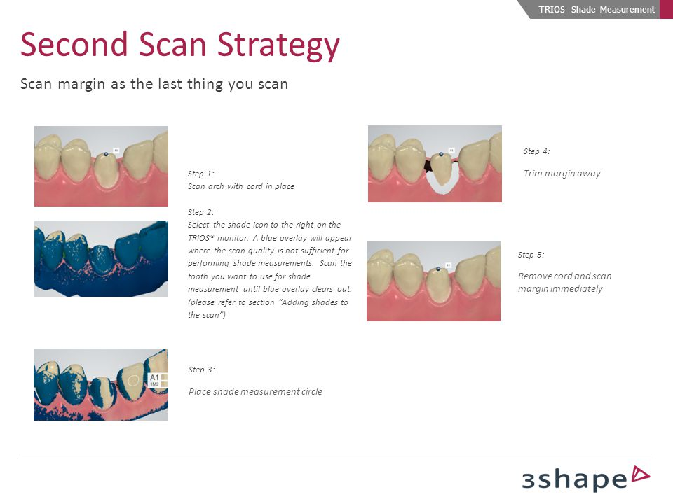 Second Scan Strategy Scan margin as the last thing you scan