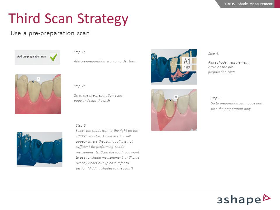 Third Scan Strategy Use a pre-preparation scan TRIOS Shade Measurement