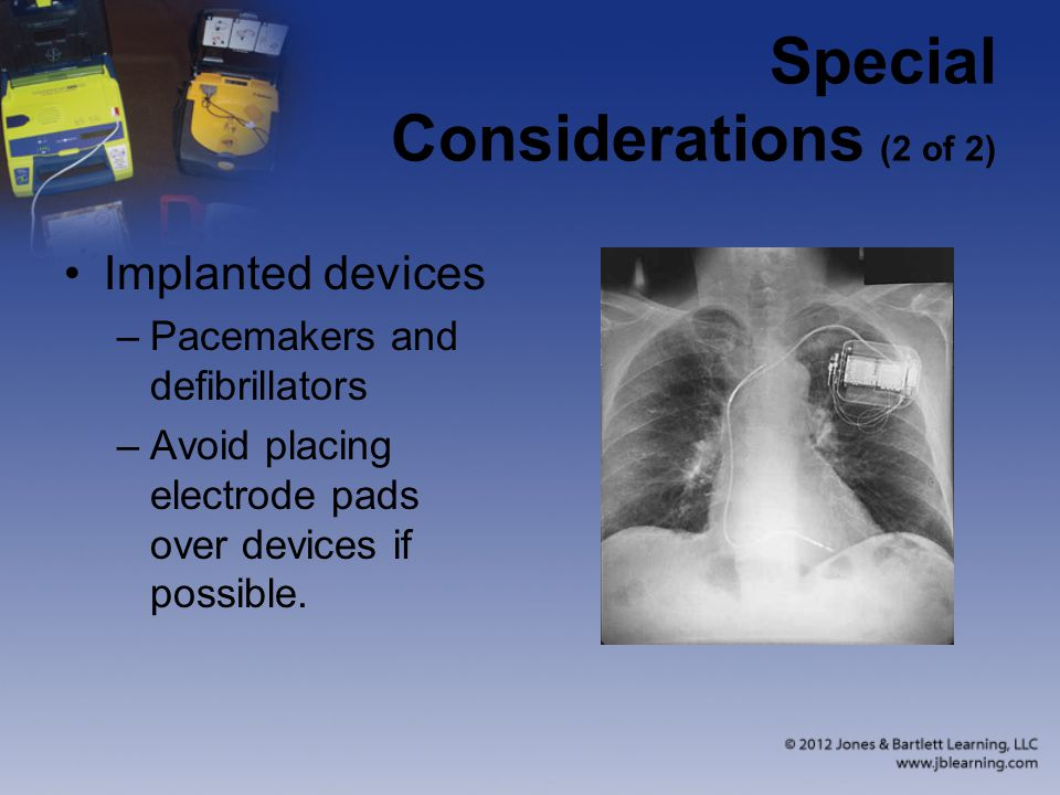 Special Considerations (2 of 2)