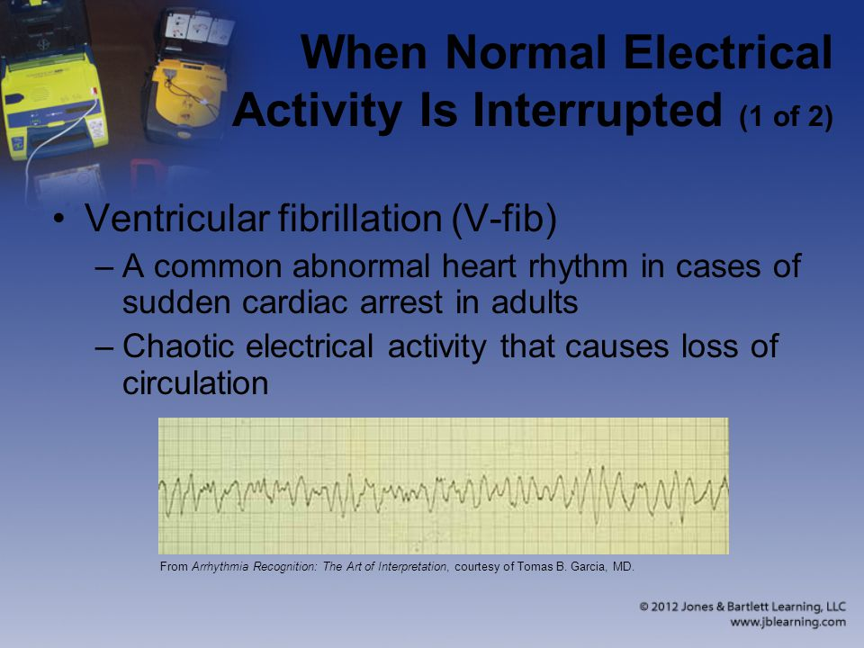 When Normal Electrical Activity Is Interrupted (1 of 2)