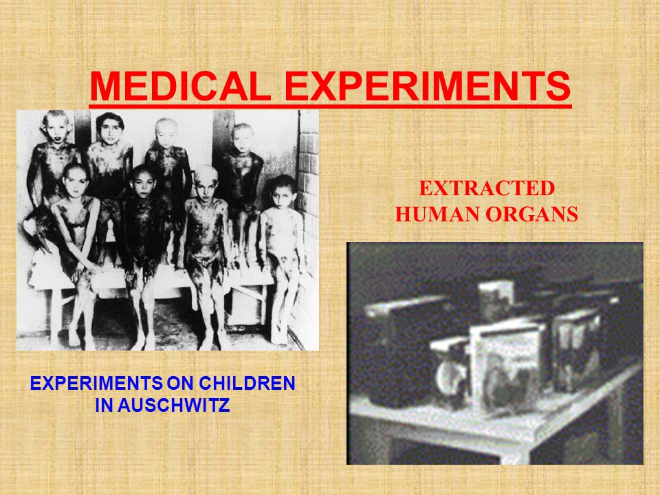 EXTRACTED HUMAN ORGANS EXPERIMENTS ON CHILDREN IN AUSCHWITZ
