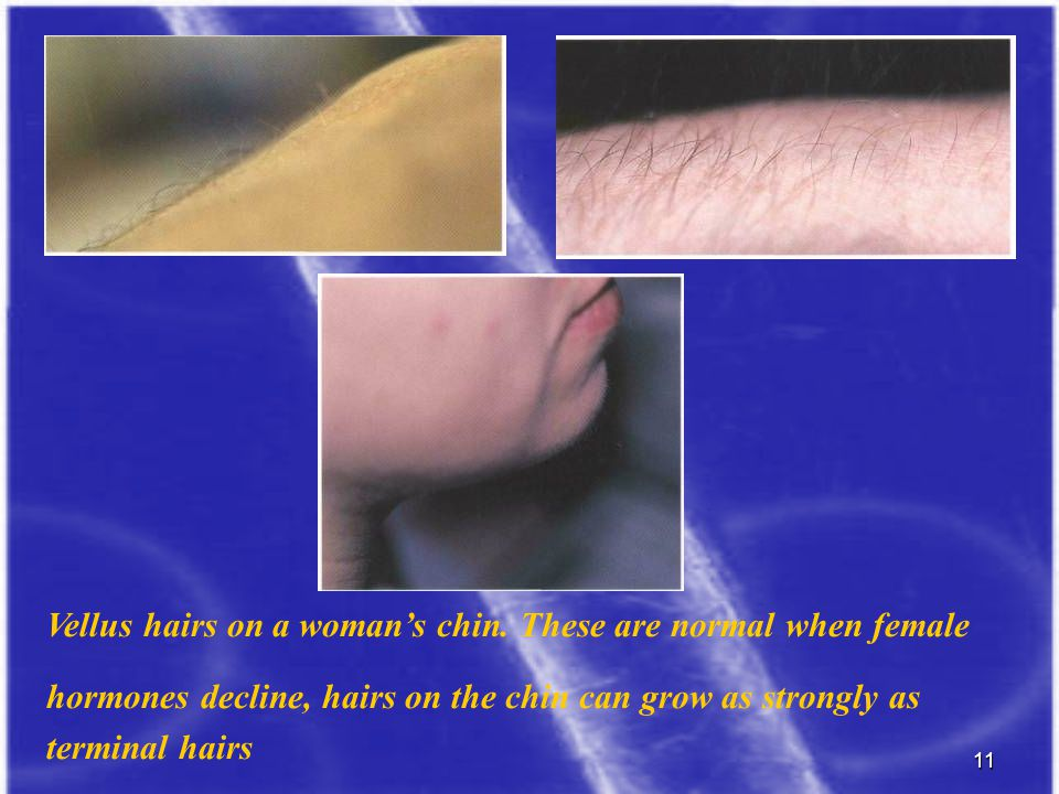 d Vellus hairs on a woman's chin. These are normal when female