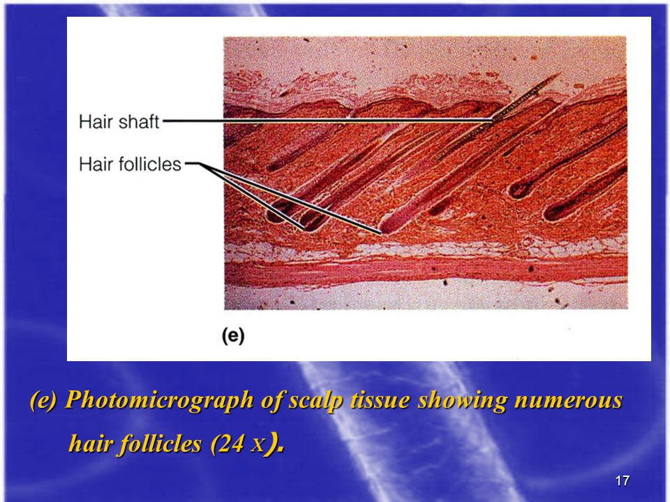 (e) Photomicrograph of scalp tissue showing numerous