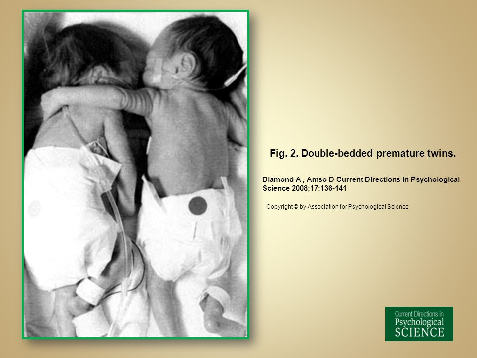 Fig. 2. Double-bedded premature twins.