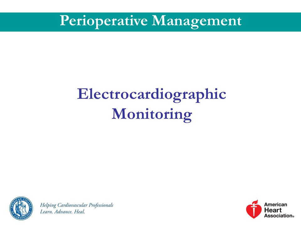 Perioperative Management Electrocardiographic Monitoring