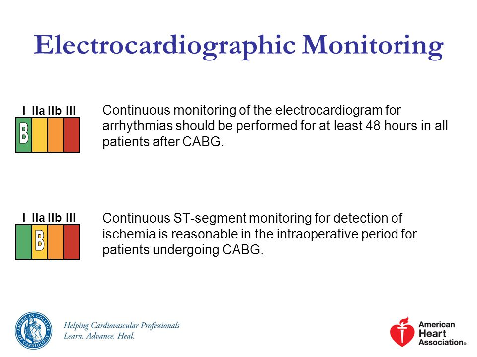 Electrocardiographic Monitoring
