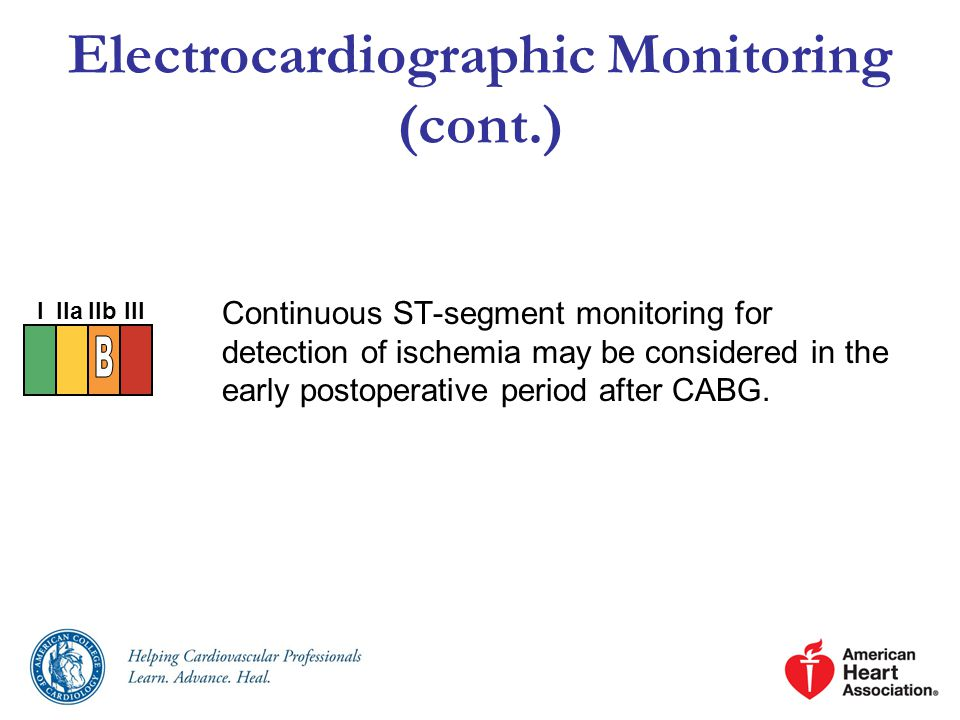 Electrocardiographic Monitoring (cont.)