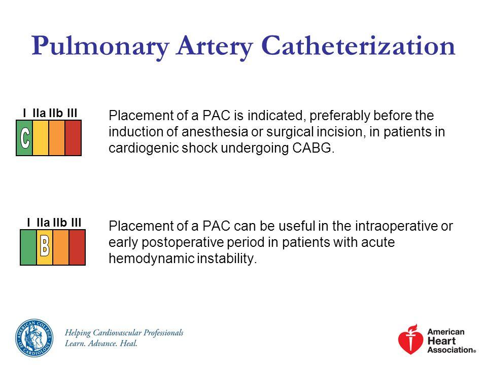 Pulmonary Artery Catheterization