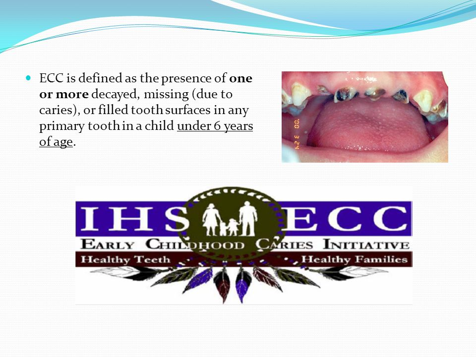 ECC is defined as the presence of one or more decayed, missing (due to caries), or filled tooth surfaces in any primary tooth in a child under 6 years of age.