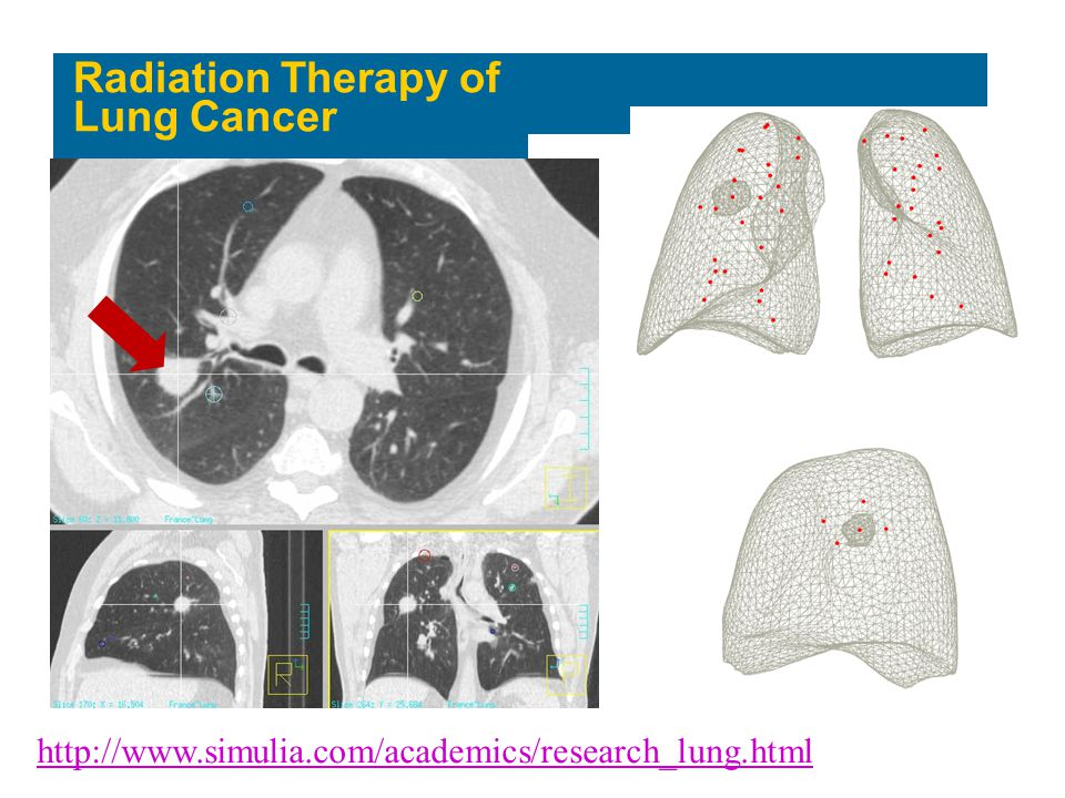 Radiation Therapy of Lung Cancer
